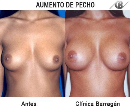 antes y después aumento de pechos via axiliar retropectoral