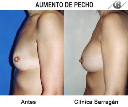 antes y después aumento de pecho prótesis peqeueñas lateral