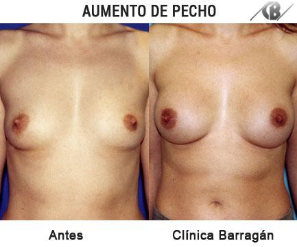 antes y después aumento mamario protesis pequeñas width=