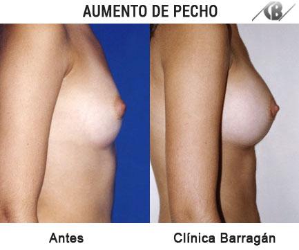 antes y después aumento mamario vista lateral