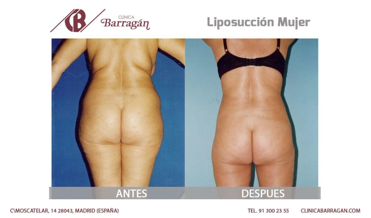 Cirugía de liposucción antes y después - Clinica Barragán