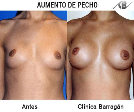 antes y después aumento de pecho por vía axilar