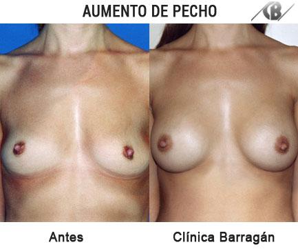 antes y después aumento de pechos protesis pequeñas