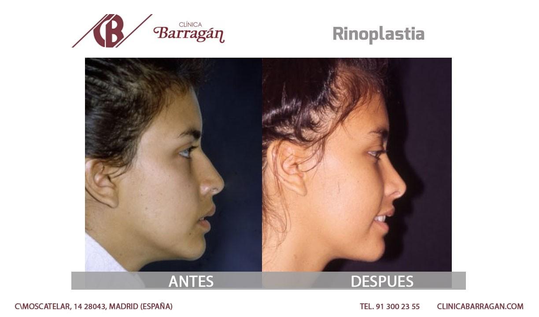 Imagenes de operaciones de nariz antes y despues