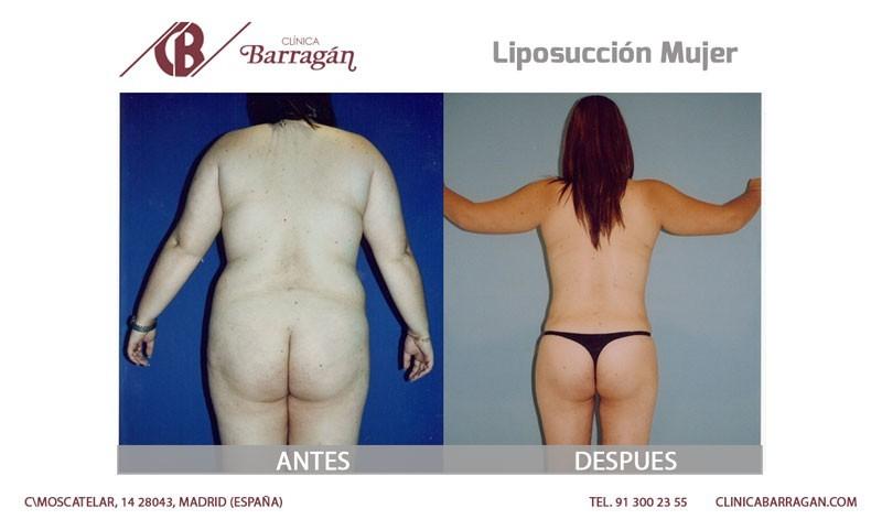 Antes y después de una liposucción en mujer
