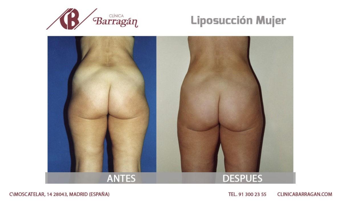 resultados liposuccción de piernas antes y después