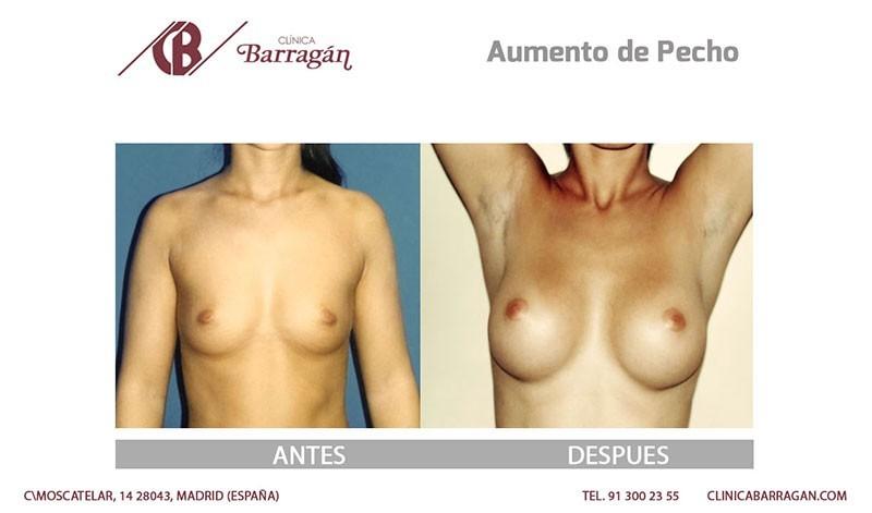 Operación de aumento de pechos antes y despues