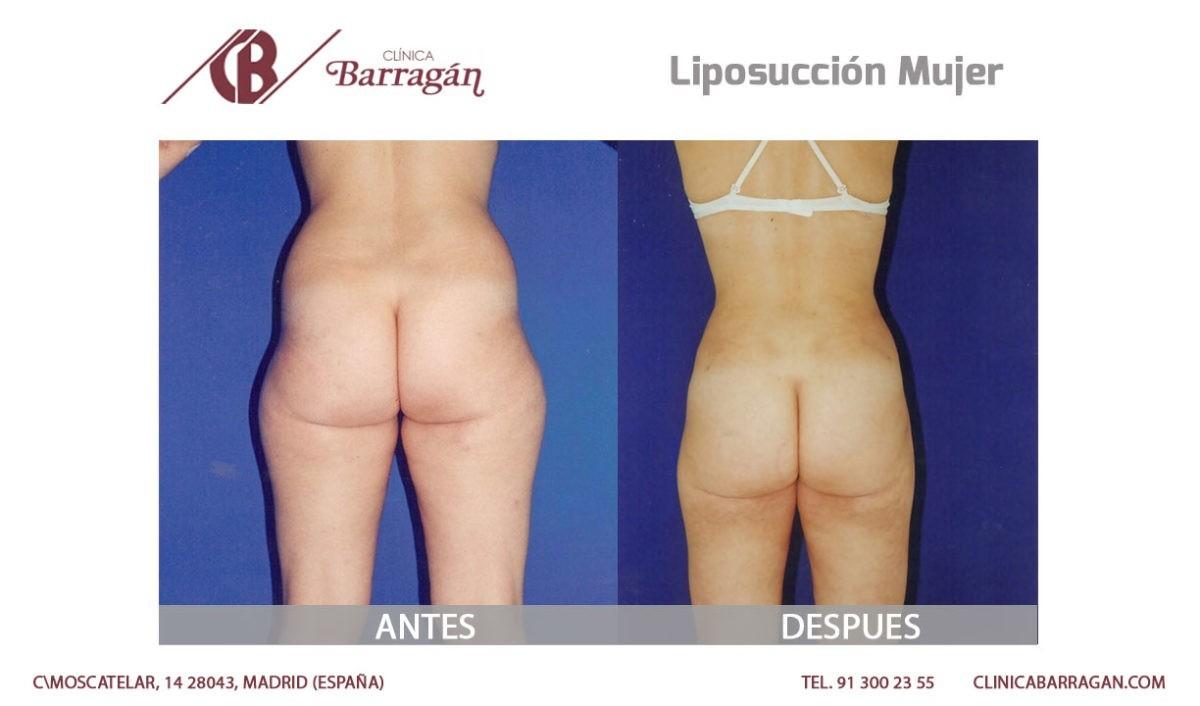 Resultados de una lipoescultura o liposucción antes y después