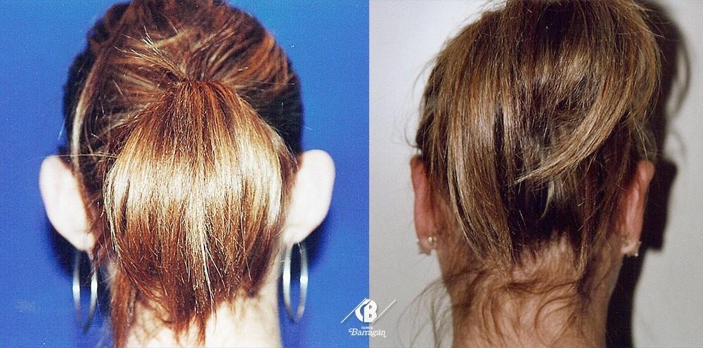 foto antés después de una operación de cirugía de orejas