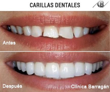 Fotos antes y depues de escultura dental