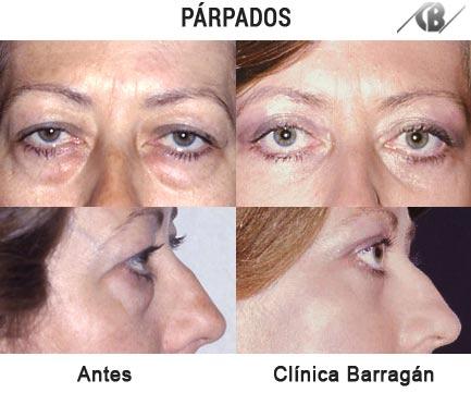 Fotos antes y después de Blefaroplastia o cirugía de párpados