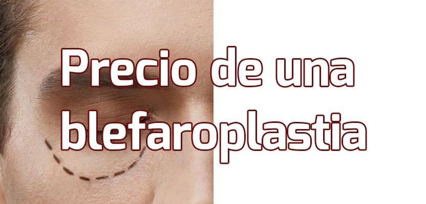 Precio Blefaroplastia – ¿Cuánto cuesta hacerse una Cirugía de Párpados?