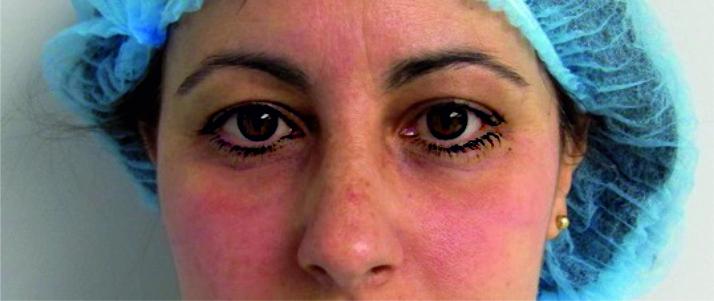 Concentrado de Lipocitos